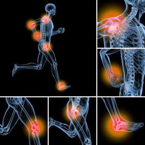 Arthrose, Gelenkschmerzen - OZW
